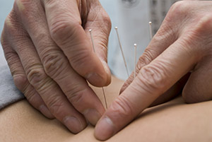 Although researchers used electro-acupuncture in this study, acupuncture without electricity exerts similar effects and represents the standard of practice in acupuncture medicine.