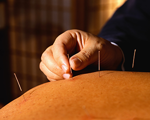Acupuncture can relieve the unpleasant symptoms of arthritis. After receiving a series of acupuncture treatments, most patients' pain, swelling and stiffness are relieved, provided the acupuncturist they visited is licensed, well-trained and experienced
